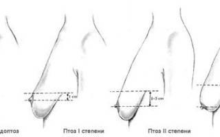 Современные способы подтяжки груди. Изменение формы грудных желез — причины и заболевания