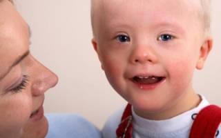 Вероятность синдрома дауна у женщин после 40. Почему рождаются дети с синдромом Дауна: причины, риски. Группы риска и статистические данные