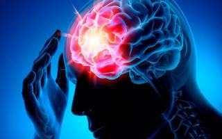Медикаментозная профилактика инсульта головного мозга у женщин (мужчин) и можно ли предупредить (предотвратить) народными средствами. Как предотвратить инсульт у мужчин: факторы риска