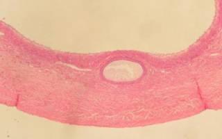 Желтое тело норма по неделям. Изменения и патологии органа. Отклонения от нормы