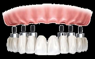 Как проводится протезирование при отсутствии большого количества зубов?